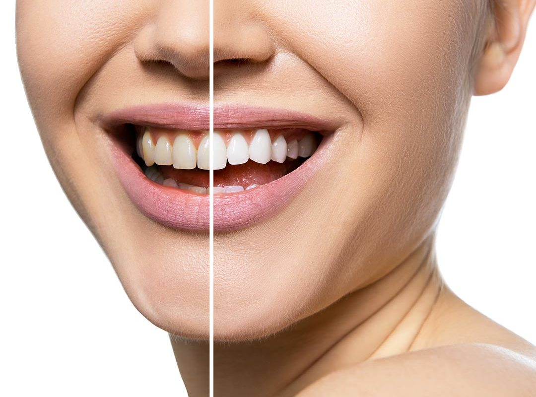 teeth_whitening_larger